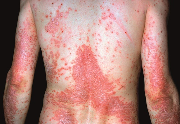 Obat Herbal Psoriasis Terbaru