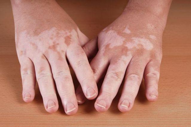 Obat Herbal Vitiligo Terbaik